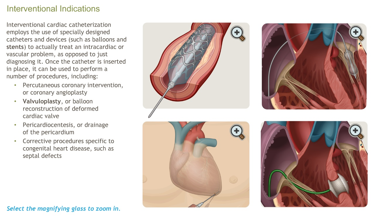 The Principles Of Cardiac Catheterization